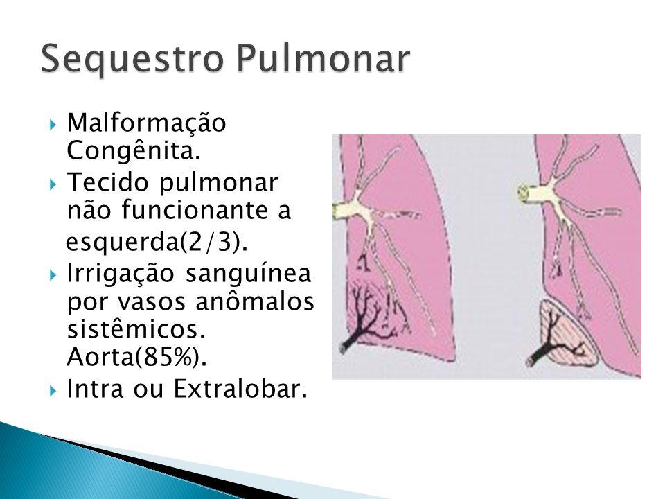 Malformação Congênita.Tecido pulmonar não funcionante a esquerda(2/3).