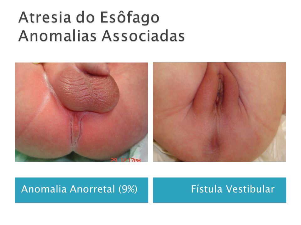 Anomalia Anorretal (9%) Fístula Vestibular