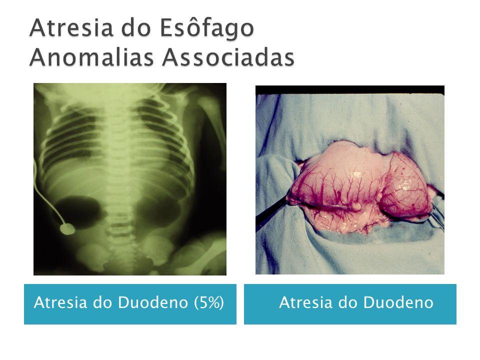 HidronefroseMá Rotação Intestinal(4%)