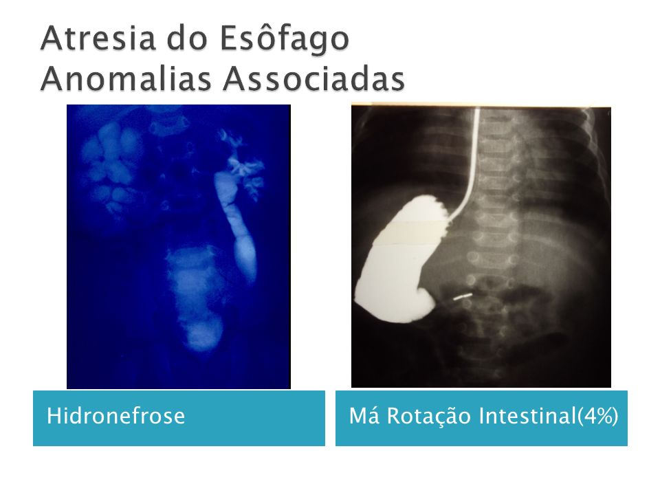 Estenose da anastomose(10-20%).Traqueomalácia(10-15%) Fístula traqueoesofágica recorrente(3-14%).