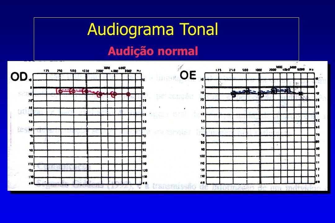 Audiograma Tonal Audição normal