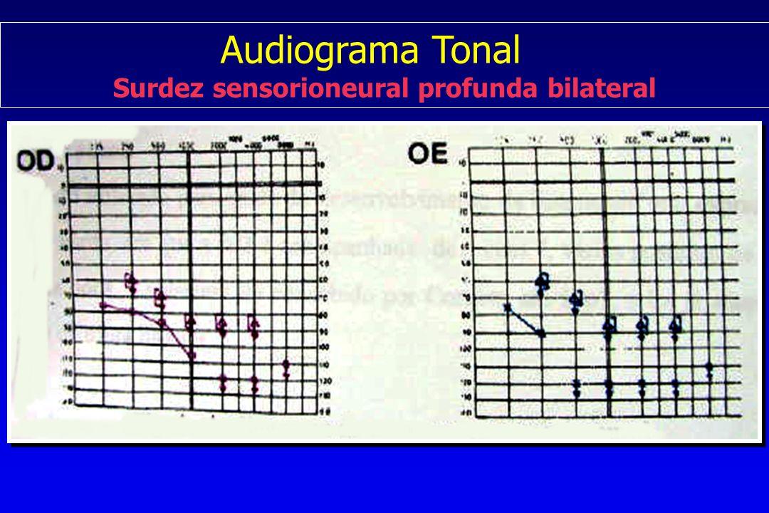 Audiograma Tonal Surdez sensorioneural profunda bilateral