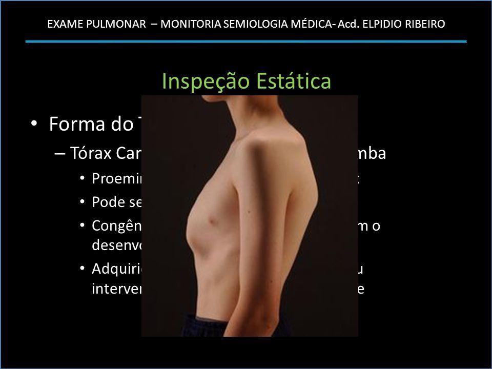 EXAME PULMONAR – MONITORIA SEMIOLOGIA MÉDICA- Acd. ELPIDIO RIBEIRO Inspeção Estática Forma do Tórax – Tórax Cariniforme ou em Peito de Pomba Proeminên