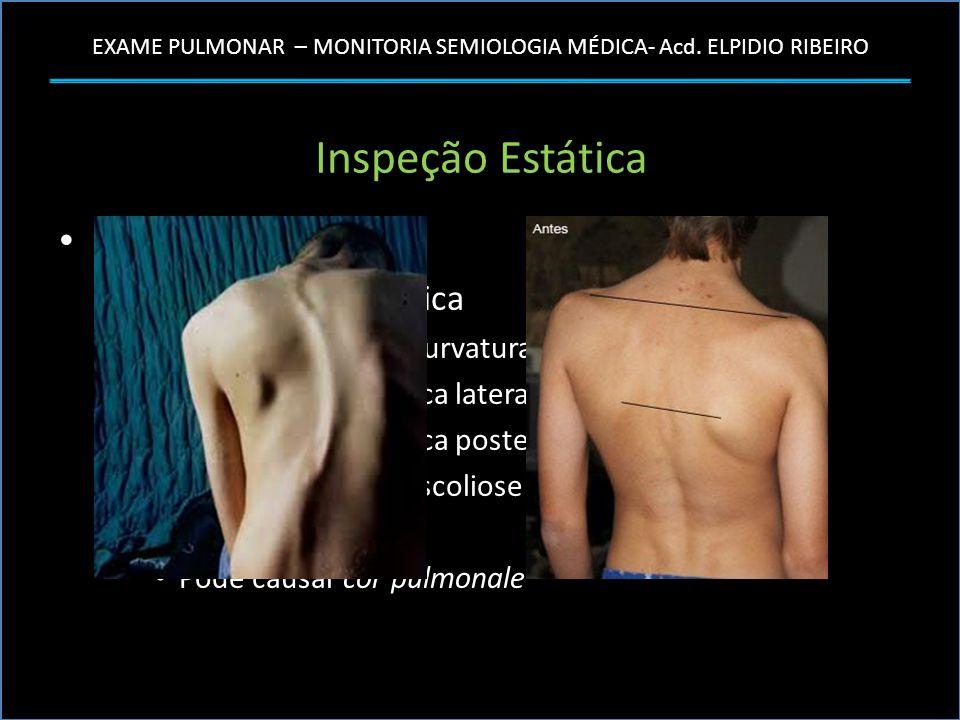 EXAME PULMONAR – MONITORIA SEMIOLOGIA MÉDICA- Acd. ELPIDIO RIBEIRO Inspeção Estática Forma do Tórax – Cifoescoliose Torácica Anormalidade da curvatura