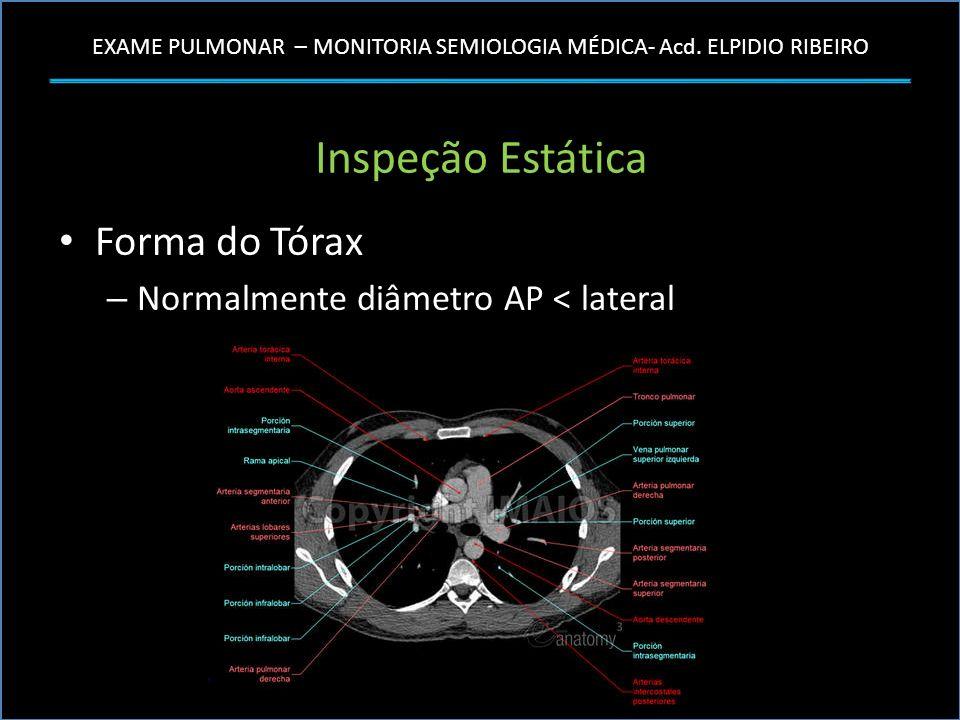 EXAME PULMONAR – MONITORIA SEMIOLOGIA MÉDICA- Acd. ELPIDIO RIBEIRO Inspeção Estática Forma do Tórax – Normalmente diâmetro AP < lateral