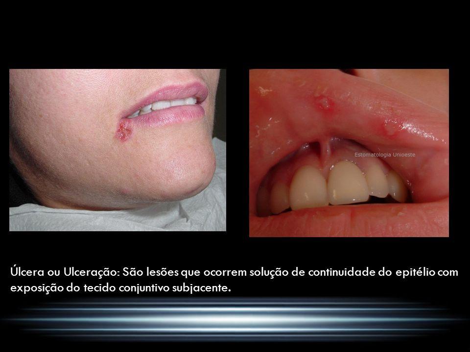 Úlcera ou Ulceração: São lesões que ocorrem solução de continuidade do epitélio com exposição do tecido conjuntivo subjacente.