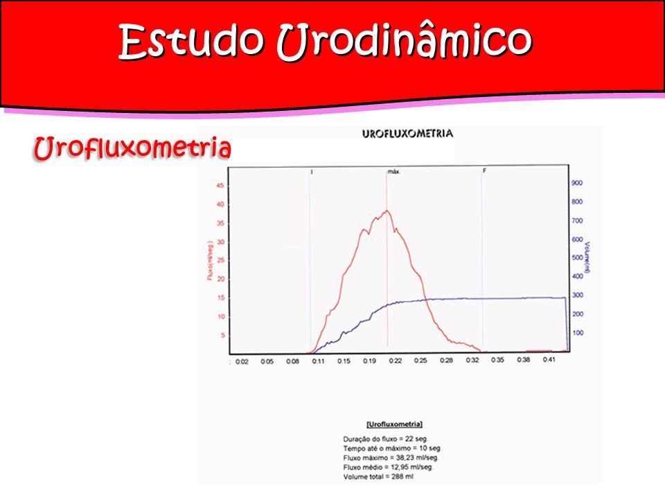 Estudo Urodinâmico Urofluxometria