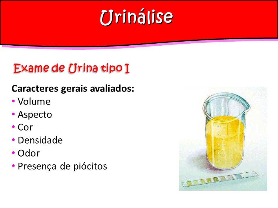 Urinálise Exame de Urina tipo I Caracteres gerais avaliados: Volume Aspecto Cor Densidade Odor Presença de piócitos