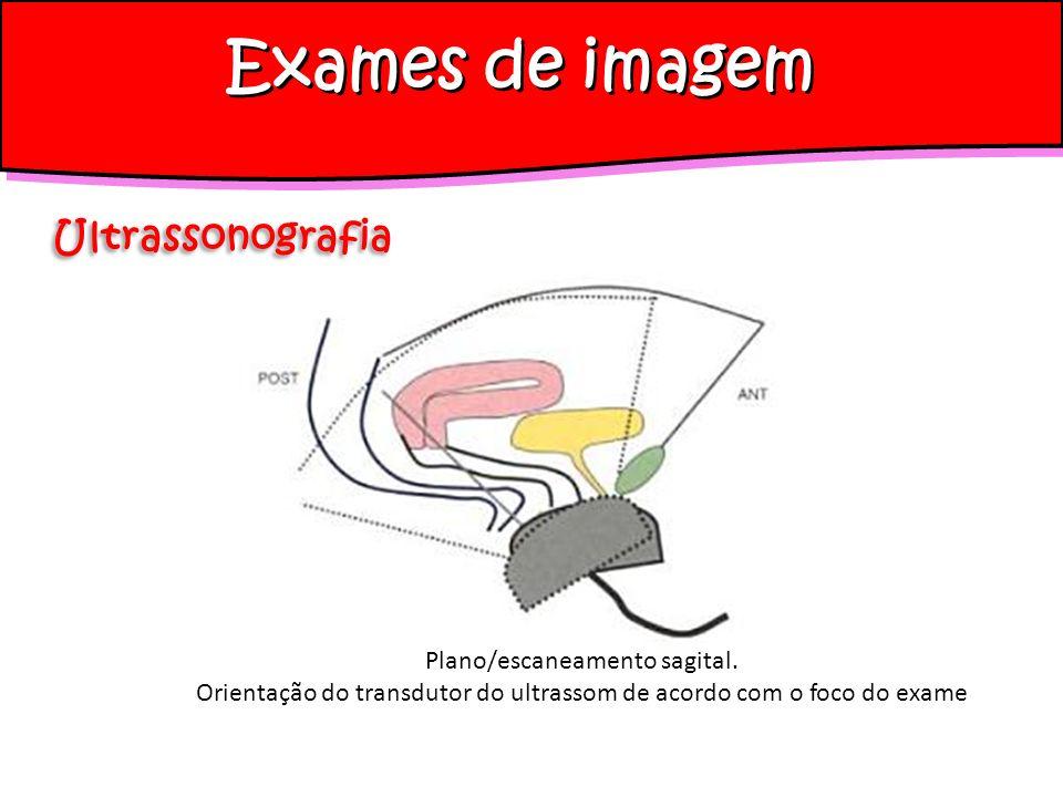 Plano/escaneamento sagital. Orientação do transdutor do ultrassom de acordo com o foco do exame Exames de imagem Ultrassonografia