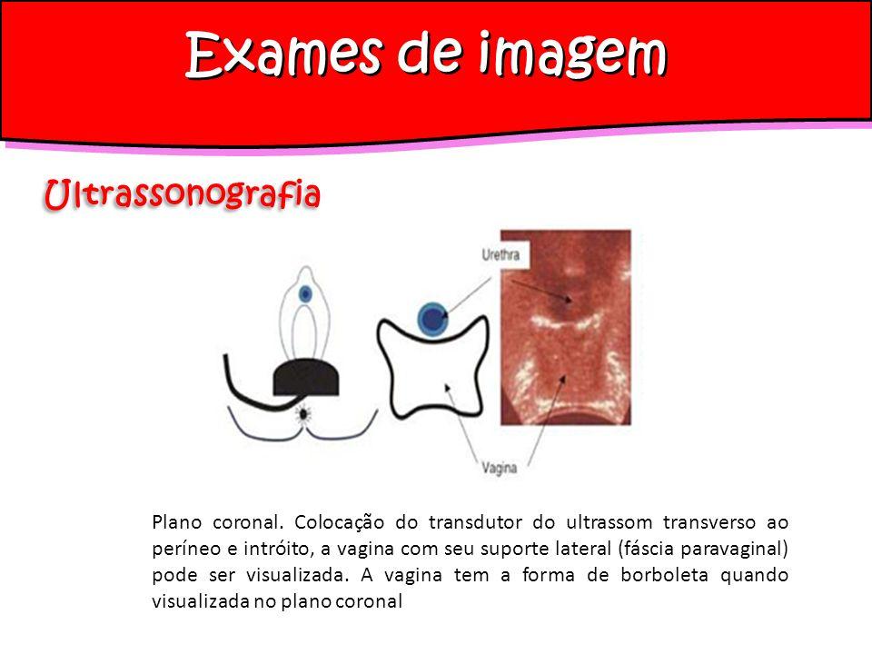 Plano coronal. Colocação do transdutor do ultrassom transverso ao períneo e intróito, a vagina com seu suporte lateral (fáscia paravaginal) pode ser v