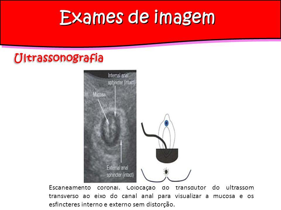 Escaneamento coronal. Colocação do transdutor do ultrassom transverso ao eixo do canal anal para visualizar a mucosa e os esfincteres interno e extern