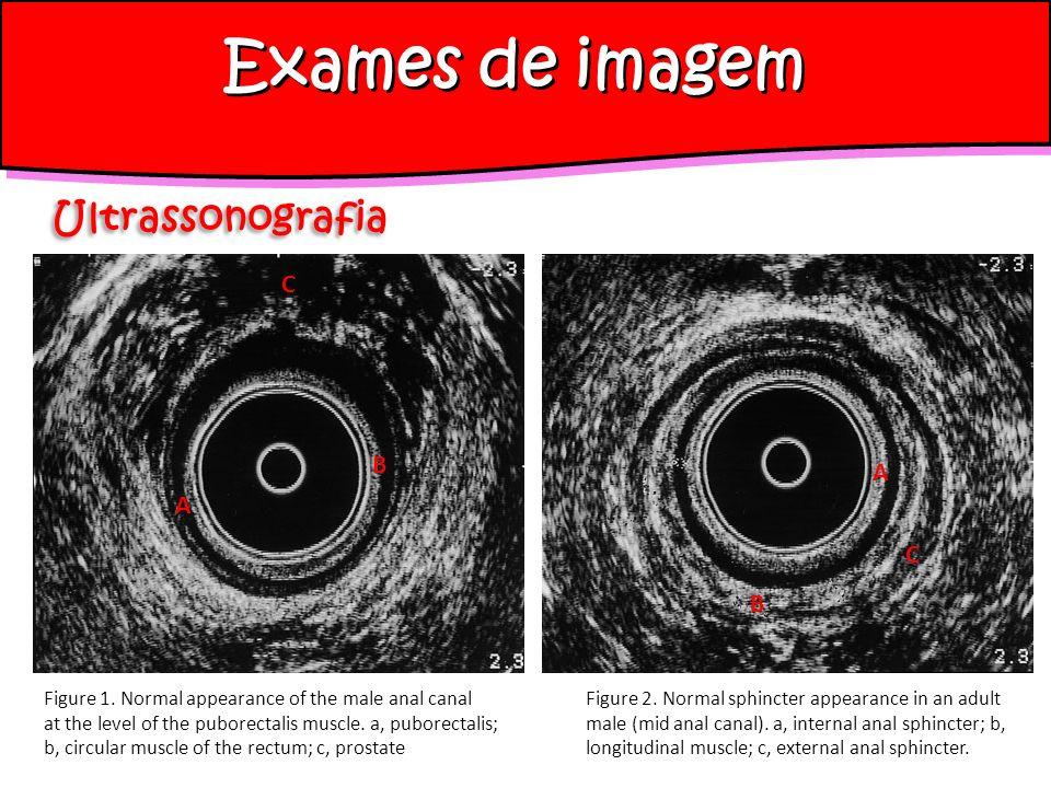 Exames de imagem Ultrassonografia Figure 1.