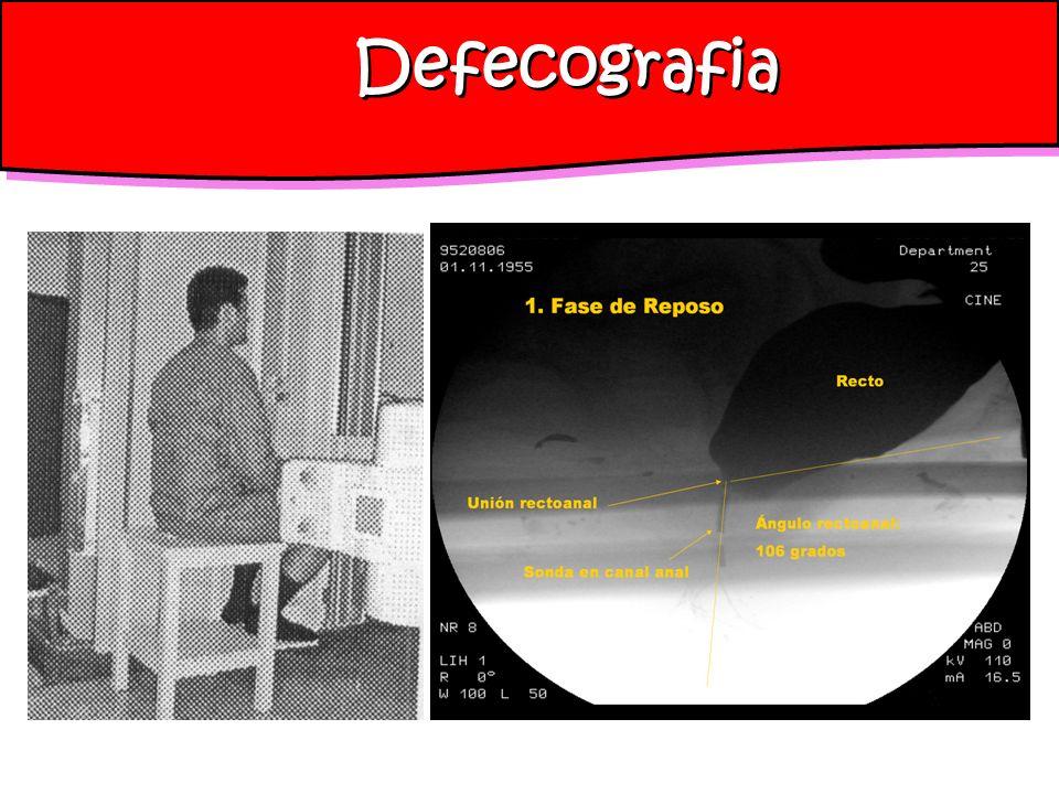 Defecografia