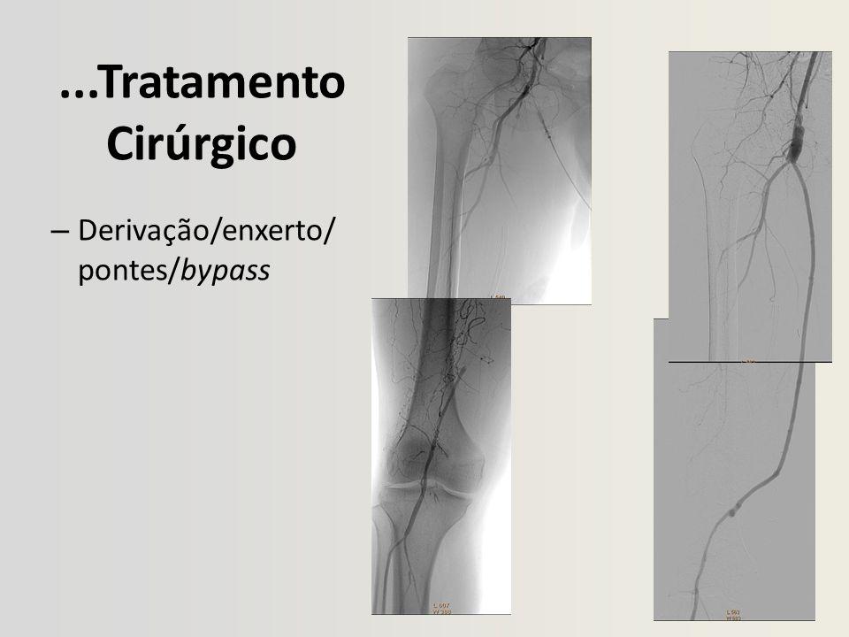 ...Tratamento Cirúrgico – Derivação/enxerto/ pontes/bypass