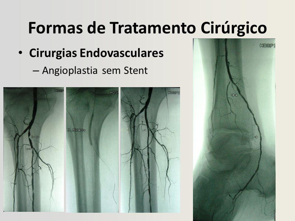 Formas de Tratamento Cirúrgico Cirurgias Endovasculares – Angioplastia sem Stent