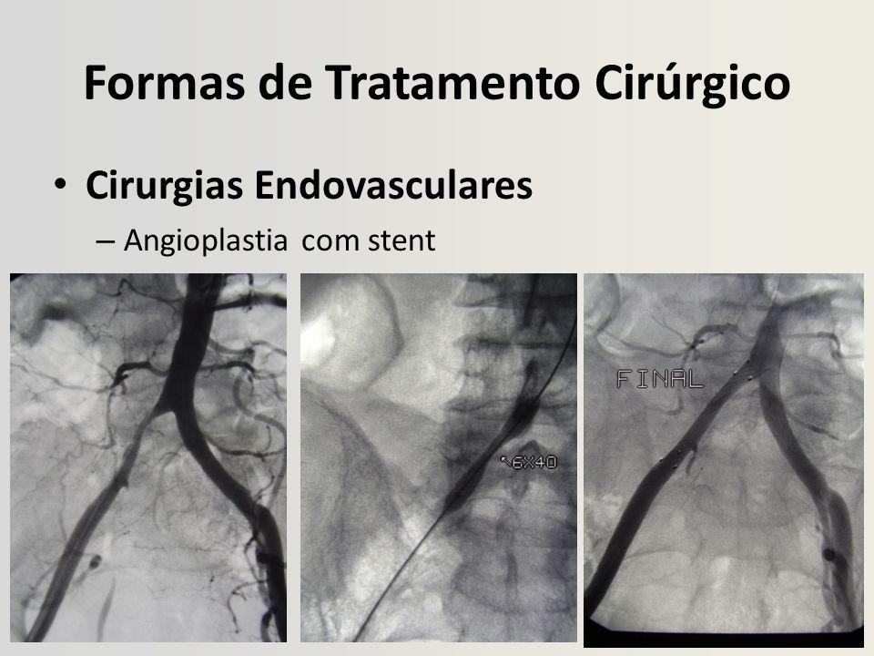 Formas de Tratamento Cirúrgico Cirurgias Endovasculares – Angioplastia com stent