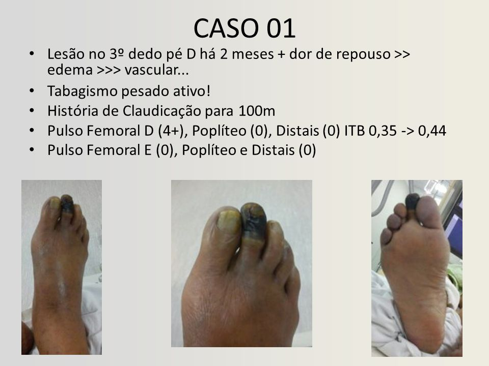 CASO 01 Lesão no 3º dedo pé D há 2 meses + dor de repouso >> edema >>> vascular... Tabagismo pesado ativo! História de Claudicação para 100m Pulso Fem