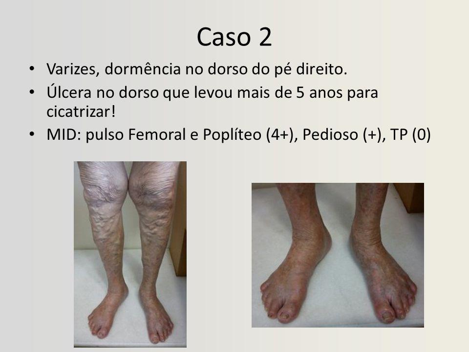Caso 2 Varizes, dormência no dorso do pé direito. Úlcera no dorso que levou mais de 5 anos para cicatrizar! MID: pulso Femoral e Poplíteo (4+), Pedios