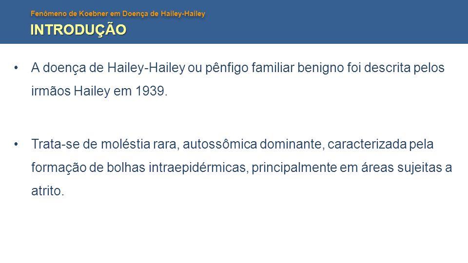 Fenômeno de Koebner em Doença de Hailey-Hailey INTRODUÇÃO A doença de Hailey-Hailey ou pênfigo familiar benigno foi descrita pelos irmãos Hailey em 19