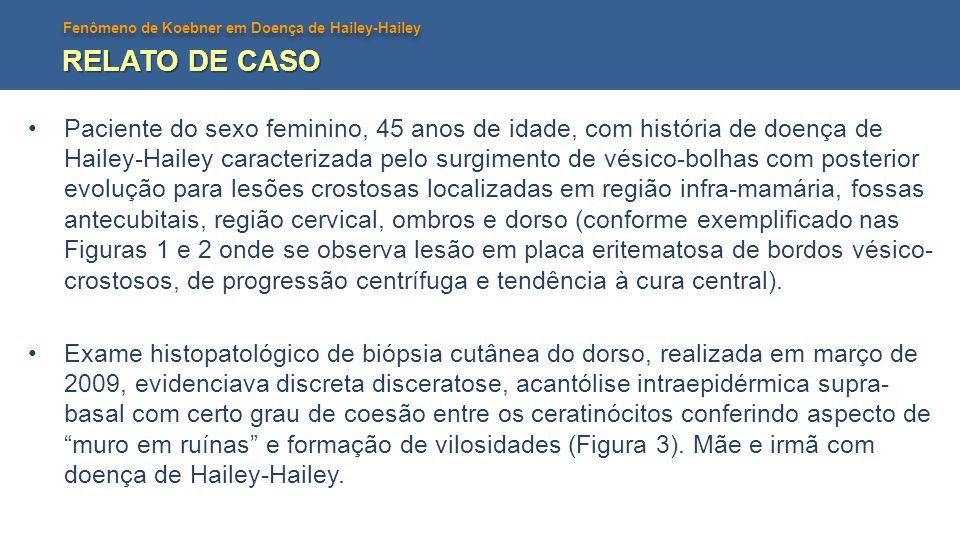 Fenômeno de Koebner em Doença de Hailey-Hailey RELATO DE CASO Paciente do sexo feminino, 45 anos de idade, com história de doença de Hailey-Hailey car