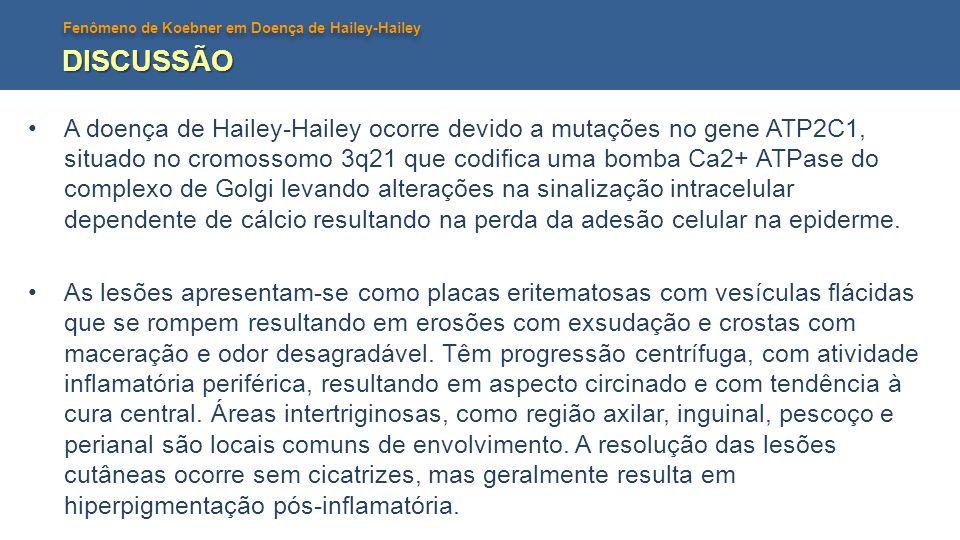 Fenômeno de Koebner em Doença de Hailey-Hailey DISCUSSÃO A doença de Hailey-Hailey ocorre devido a mutações no gene ATP2C1, situado no cromossomo 3q21 que codifica uma bomba Ca2+ ATPase do complexo de Golgi levando alterações na sinalização intracelular dependente de cálcio resultando na perda da adesão celular na epiderme.