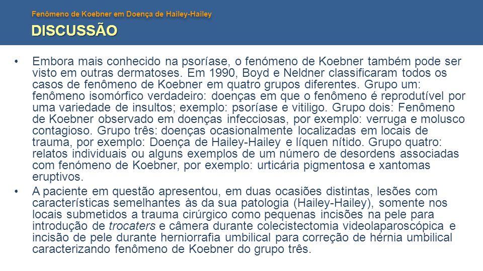 Fenômeno de Koebner em Doença de Hailey-Hailey DISCUSSÃO Embora mais conhecido na psoríase, o fenómeno de Koebner também pode ser visto em outras dermatoses.