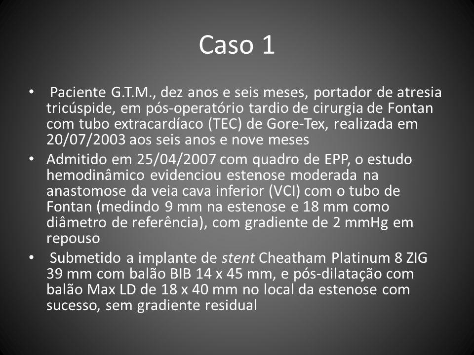 Caso 1 Paciente G.T.M., dez anos e seis meses, portador de atresia tricúspide, em pós-operatório tardio de cirurgia de Fontan com tubo extracardíaco (