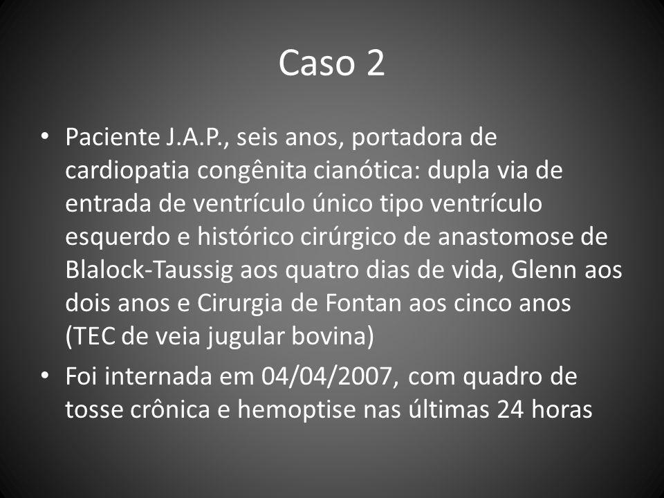 Caso 2 Paciente J.A.P., seis anos, portadora de cardiopatia congênita cianótica: dupla via de entrada de ventrículo único tipo ventrículo esquerdo e h
