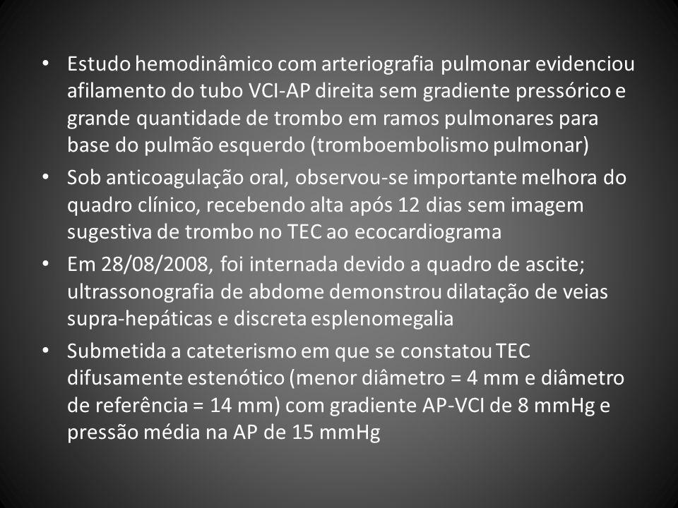 Estudo hemodinâmico com arteriografia pulmonar evidenciou afilamento do tubo VCI-AP direita sem gradiente pressórico e grande quantidade de trombo em