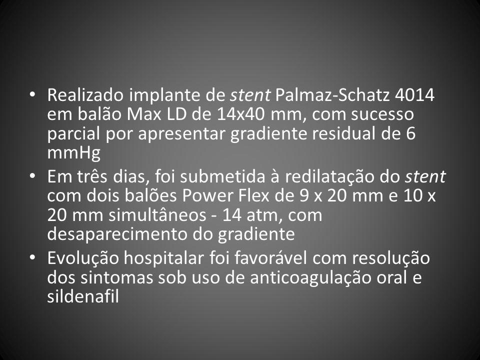 Realizado implante de stent Palmaz-Schatz 4014 em balão Max LD de 14x40 mm, com sucesso parcial por apresentar gradiente residual de 6 mmHg Em três di
