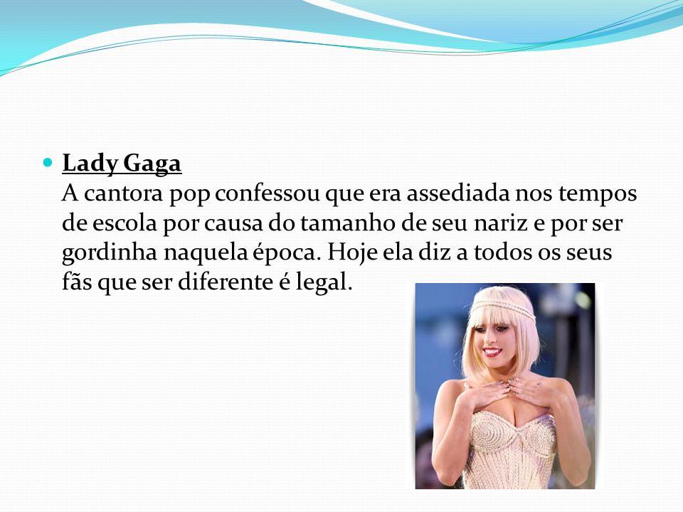 Lady Gaga A cantora pop confessou que era assediada nos tempos de escola por causa do tamanho de seu nariz e por ser gordinha naquela época. Hoje ela