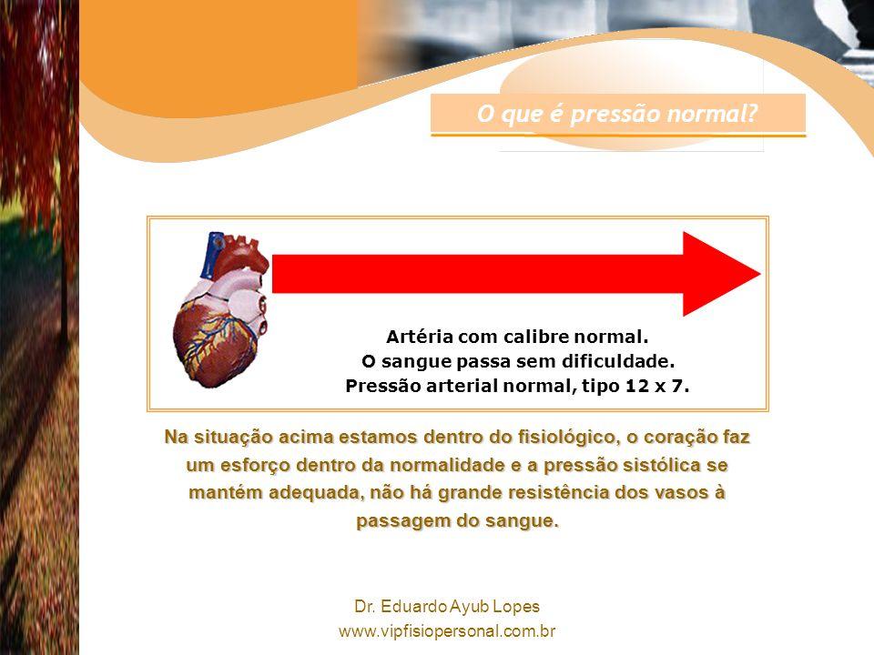 Dr.Eduardo Ayub Lopes www.vipfisiopersonal.com.br Artéria com calibre normal.