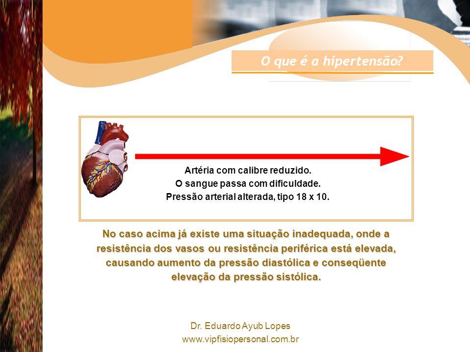 Dr.Eduardo Ayub Lopes www.vipfisiopersonal.com.br Artéria com calibre reduzido.