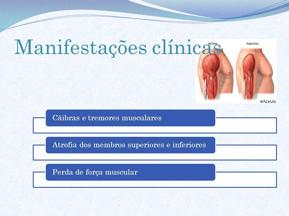 Cãibras e tremores muscularesAtrofia dos membros superiores e inferioresPerda de força muscular Manifestações clínicas