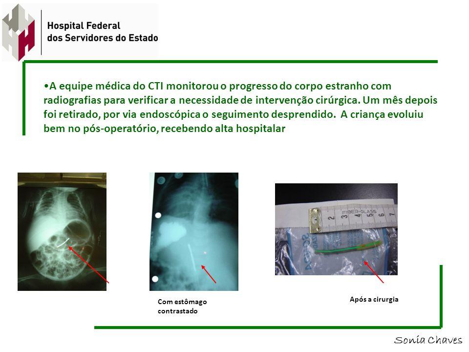 A equipe médica do CTI monitorou o progresso do corpo estranho com radiografias para verificar a necessidade de intervenção cirúrgica. Um mês depois f