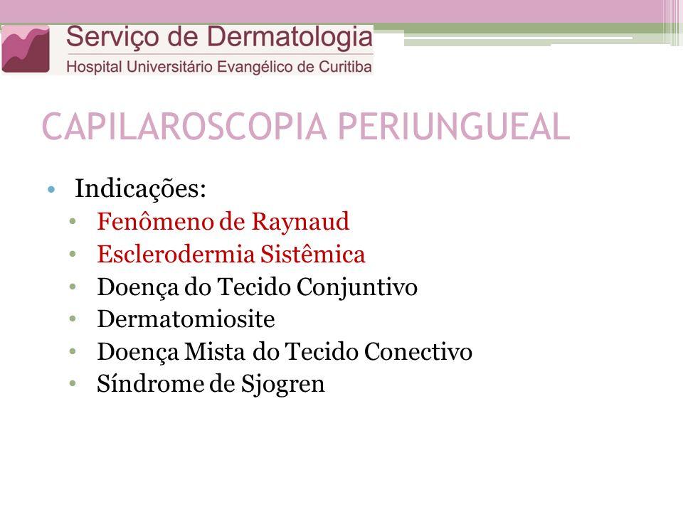 CAPILAROSCOPIA PERIUNGUEAL Indicações: Fenômeno de Raynaud Esclerodermia Sistêmica Doença do Tecido Conjuntivo Dermatomiosite Doença Mista do Tecido Conectivo Síndrome de Sjogren