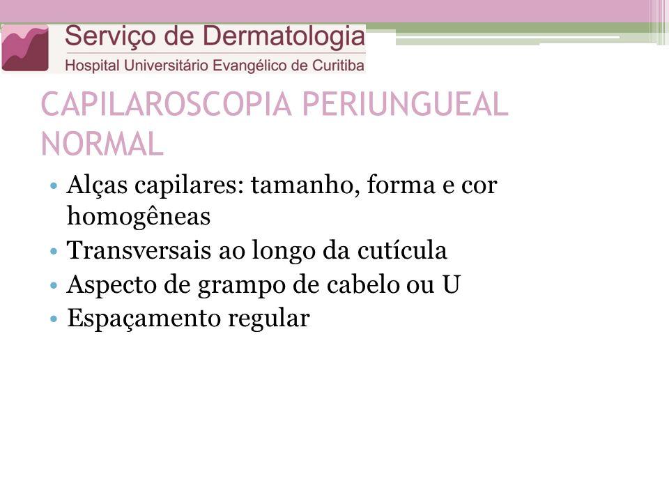 CAPILAROSCOPIA PERIUNGUEAL NORMAL Alças capilares: tamanho, forma e cor homogêneas Transversais ao longo da cutícula Aspecto de grampo de cabelo ou U Espaçamento regular