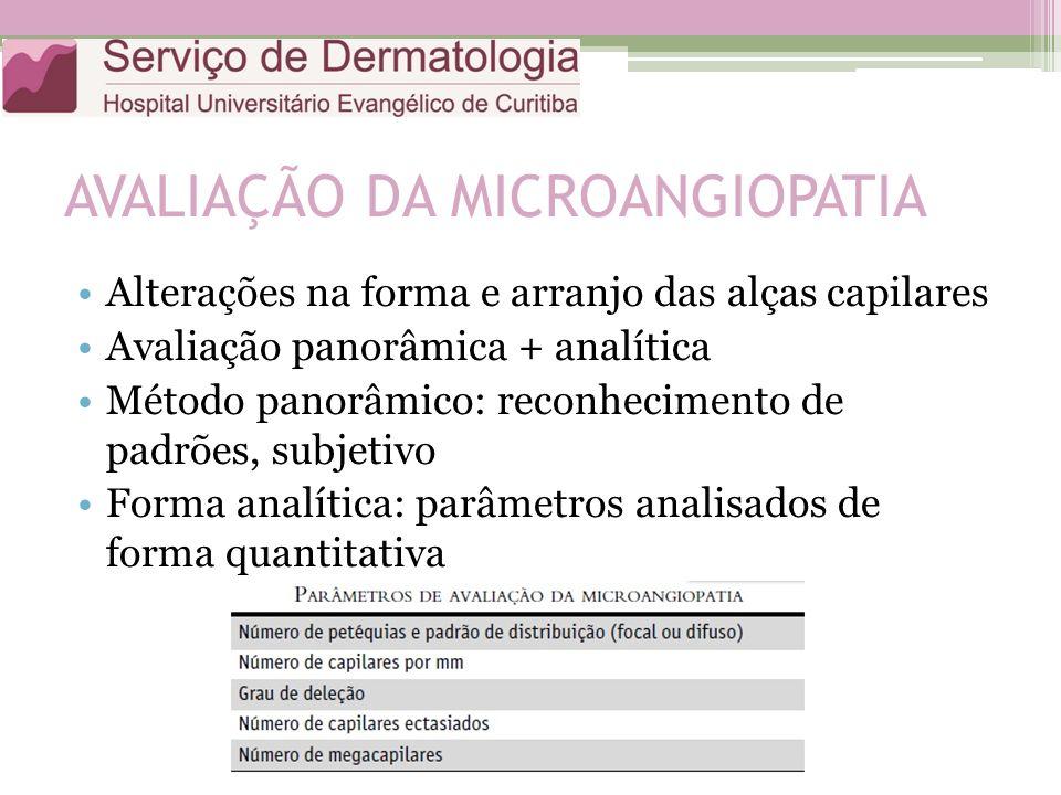 AVALIAÇÃO DA MICROANGIOPATIA Alterações na forma e arranjo das alças capilares Avaliação panorâmica + analítica Método panorâmico: reconhecimento de padrões, subjetivo Forma analítica: parâmetros analisados de forma quantitativa