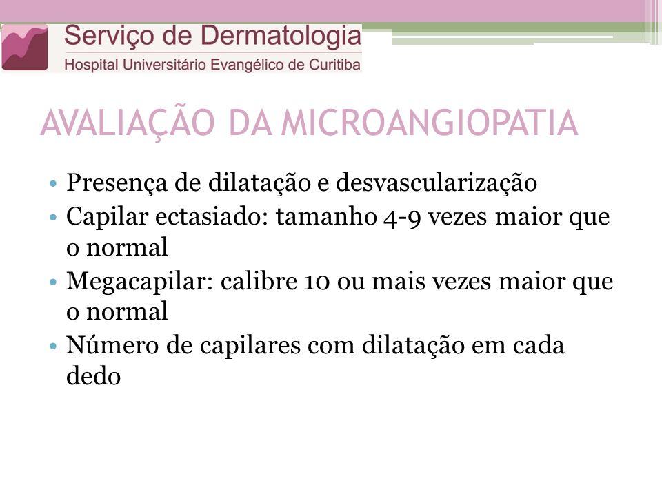 AVALIAÇÃO DA MICROANGIOPATIA Presença de dilatação e desvascularização Capilar ectasiado: tamanho 4-9 vezes maior que o normal Megacapilar: calibre 10 ou mais vezes maior que o normal Número de capilares com dilatação em cada dedo