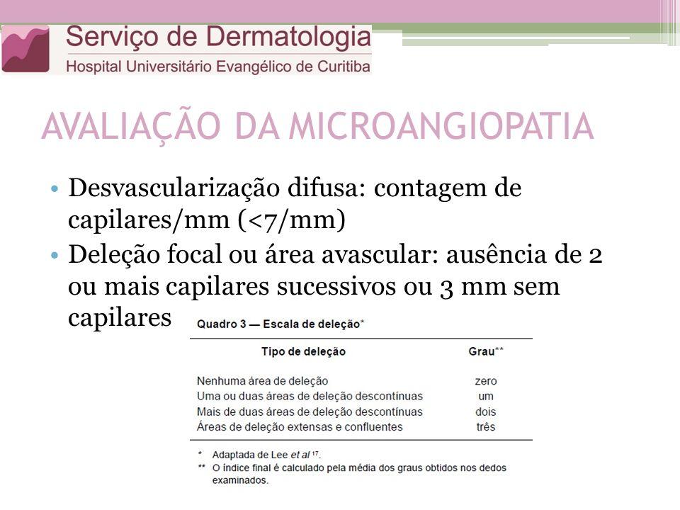 AVALIAÇÃO DA MICROANGIOPATIA Desvascularização difusa: contagem de capilares/mm (<7/mm) Deleção focal ou área avascular: ausência de 2 ou mais capilares sucessivos ou 3 mm sem capilares