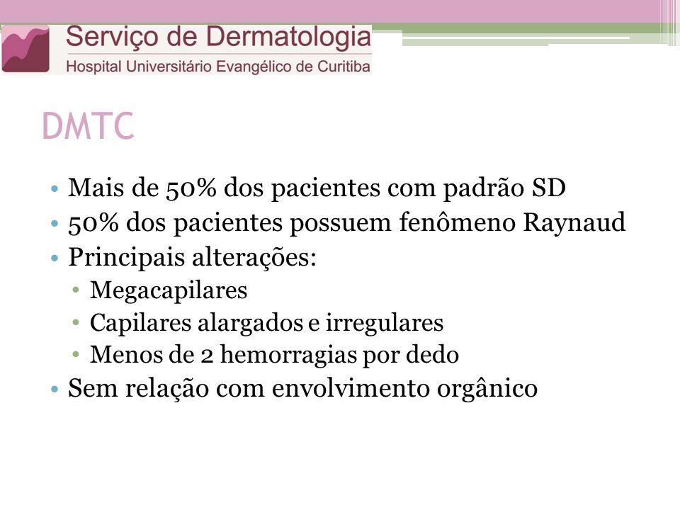 DMTC Mais de 50% dos pacientes com padrão SD 50% dos pacientes possuem fenômeno Raynaud Principais alterações: Megacapilares Capilares alargados e irregulares Menos de 2 hemorragias por dedo Sem relação com envolvimento orgânico