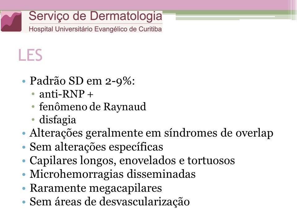 LES Padrão SD em 2-9%: anti-RNP + fenômeno de Raynaud disfagia Alterações geralmente em síndromes de overlap Sem alterações específicas Capilares longos, enovelados e tortuosos Microhemorragias disseminadas Raramente megacapilares Sem áreas de desvascularização