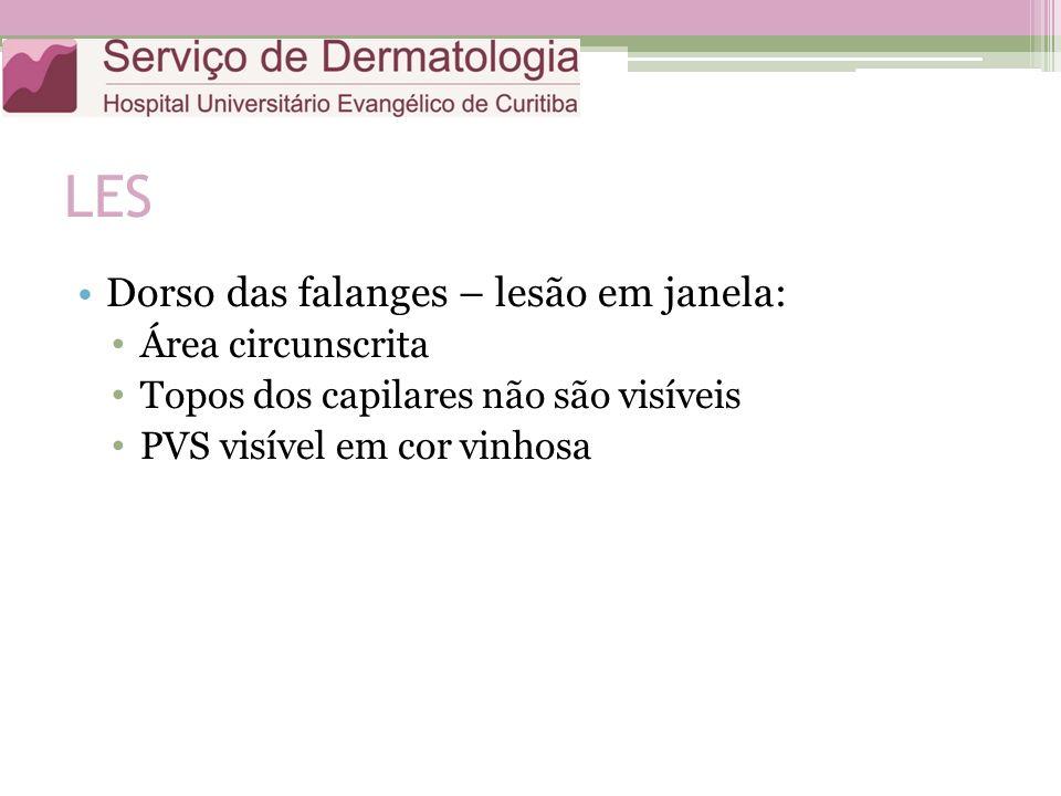 LES Dorso das falanges – lesão em janela: Área circunscrita Topos dos capilares não são visíveis PVS visível em cor vinhosa