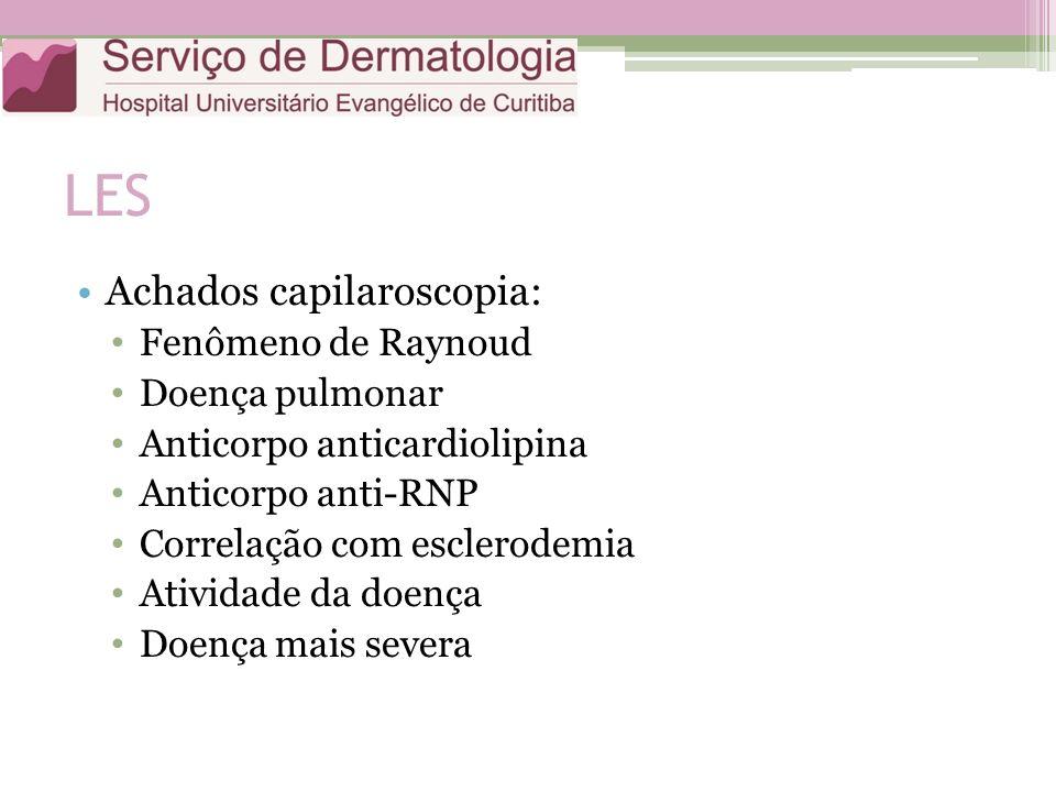LES Achados capilaroscopia: Fenômeno de Raynoud Doença pulmonar Anticorpo anticardiolipina Anticorpo anti-RNP Correlação com esclerodemia Atividade da doença Doença mais severa