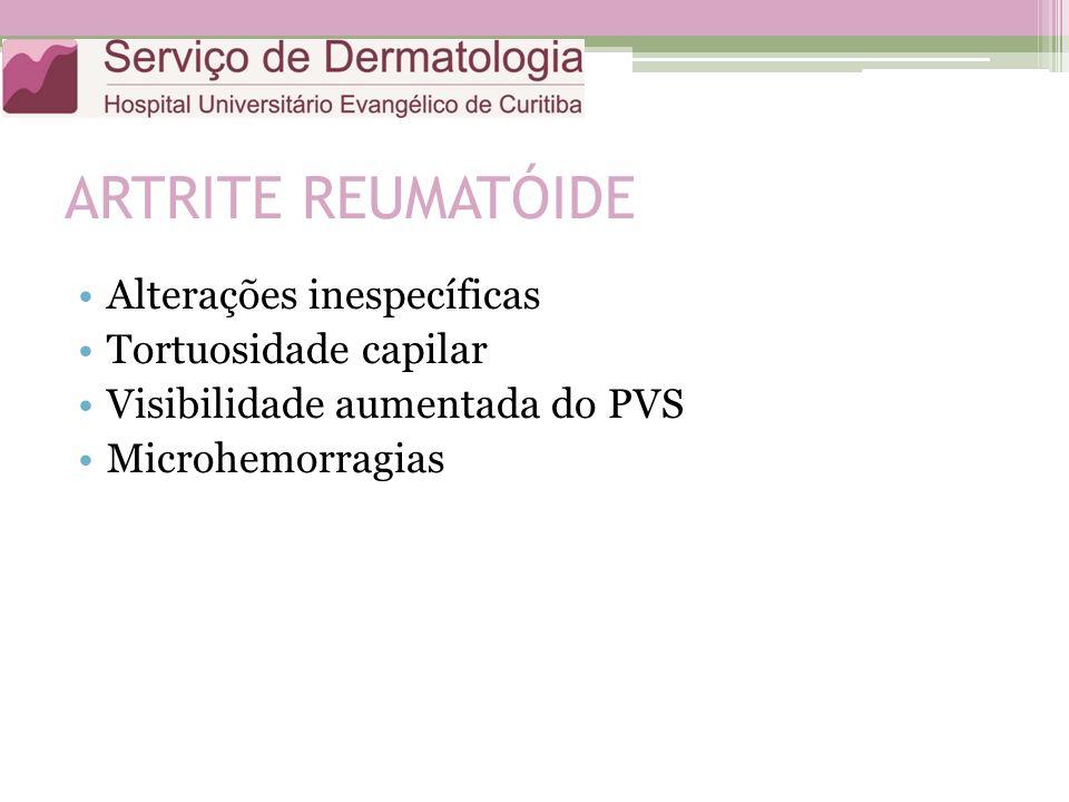 ARTRITE REUMATÓIDE Alterações inespecíficas Tortuosidade capilar Visibilidade aumentada do PVS Microhemorragias