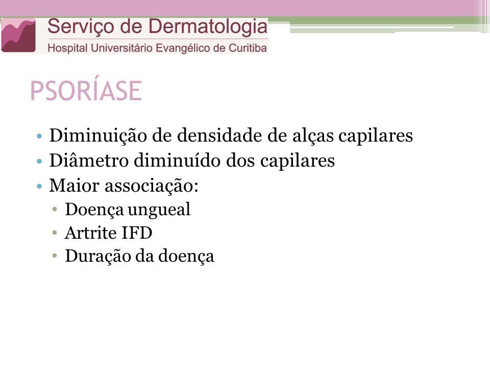 PSORÍASE Diminuição de densidade de alças capilares Diâmetro diminuído dos capilares Maior associação: Doença ungueal Artrite IFD Duração da doença