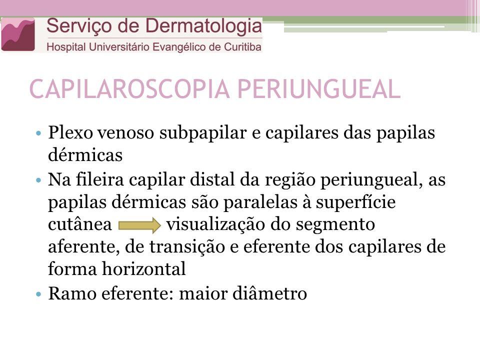 CAPILAROSCOPIA PERIUNGUEAL Plexo venoso subpapilar e capilares das papilas dérmicas Na fileira capilar distal da região periungueal, as papilas dérmicas são paralelas à superfície cutânea visualização do segmento aferente, de transição e eferente dos capilares de forma horizontal Ramo eferente: maior diâmetro