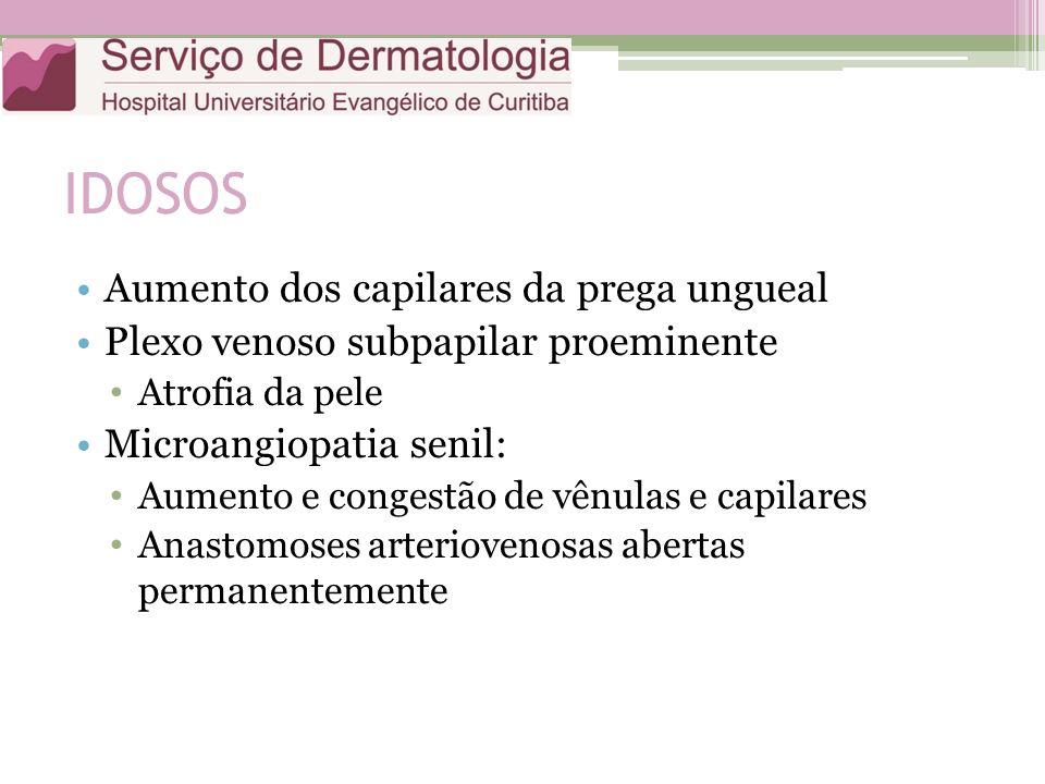 IDOSOS Aumento dos capilares da prega ungueal Plexo venoso subpapilar proeminente Atrofia da pele Microangiopatia senil: Aumento e congestão de vênulas e capilares Anastomoses arteriovenosas abertas permanentemente