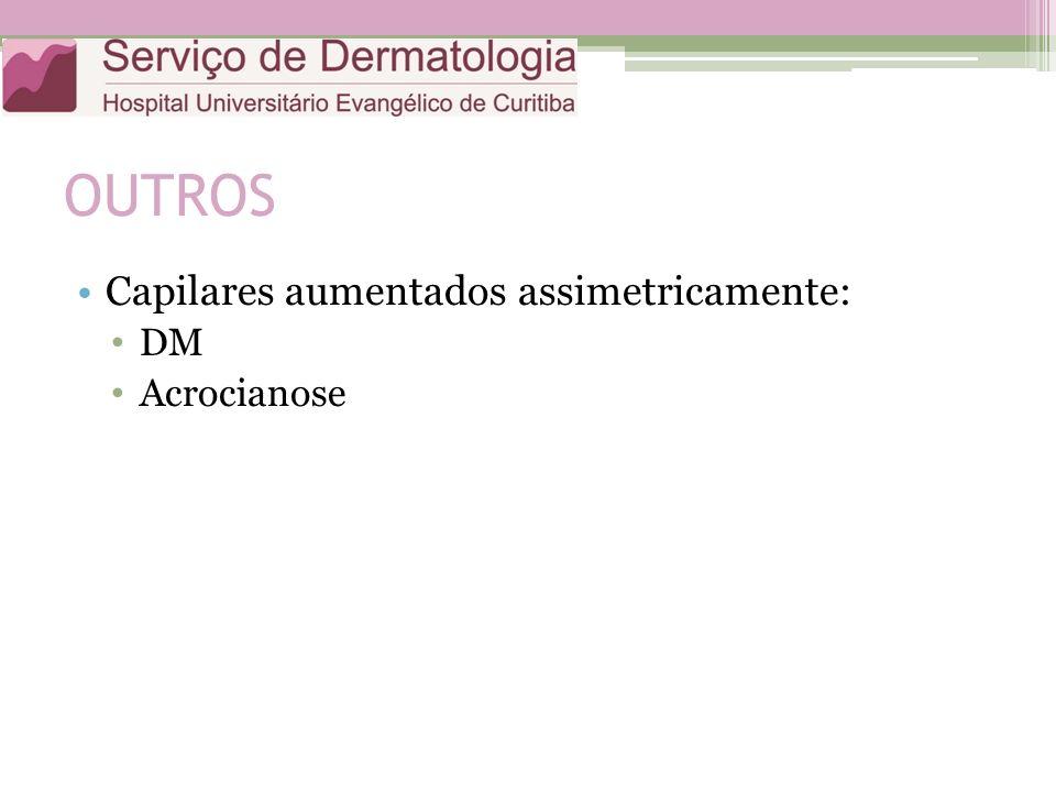 OUTROS Capilares aumentados assimetricamente: DM Acrocianose