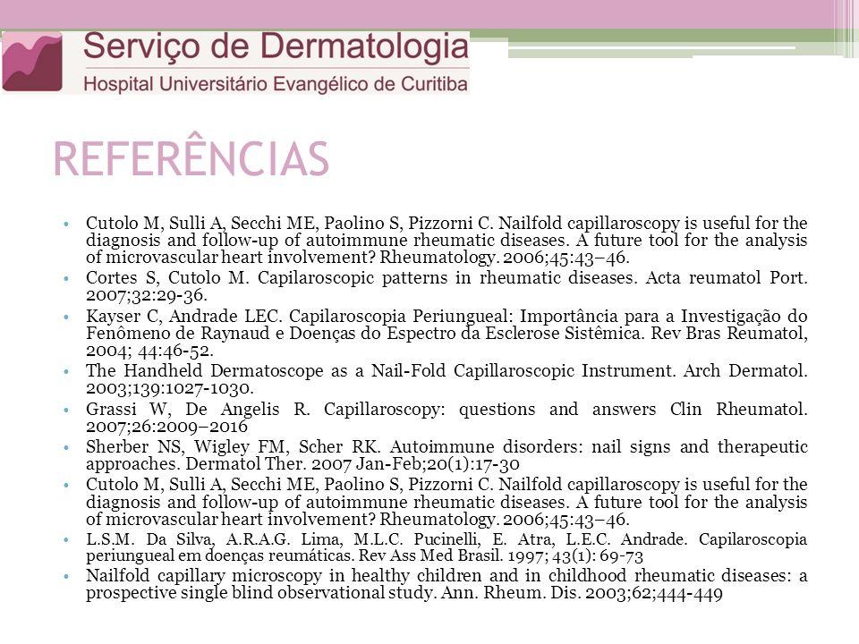 REFERÊNCIAS Cutolo M, Sulli A, Secchi ME, Paolino S, Pizzorni C. Nailfold capillaroscopy is useful for the diagnosis and follow-up of autoimmune rheum